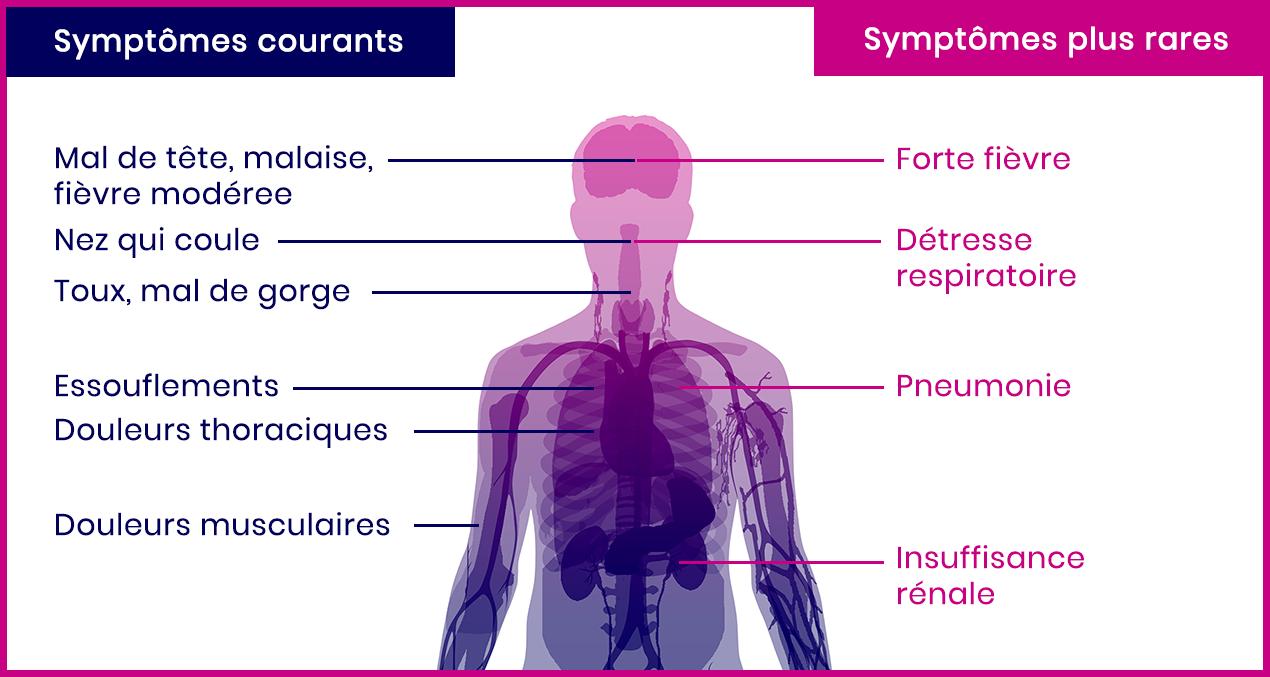 Les symptômes du Coronavirus Covid 19 - Concilio conciergerie médicale